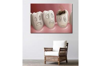 srdt2 - Çürüyen Dişten Korkan Diğer Dişler, Diş hekimi Kanvas Tablo