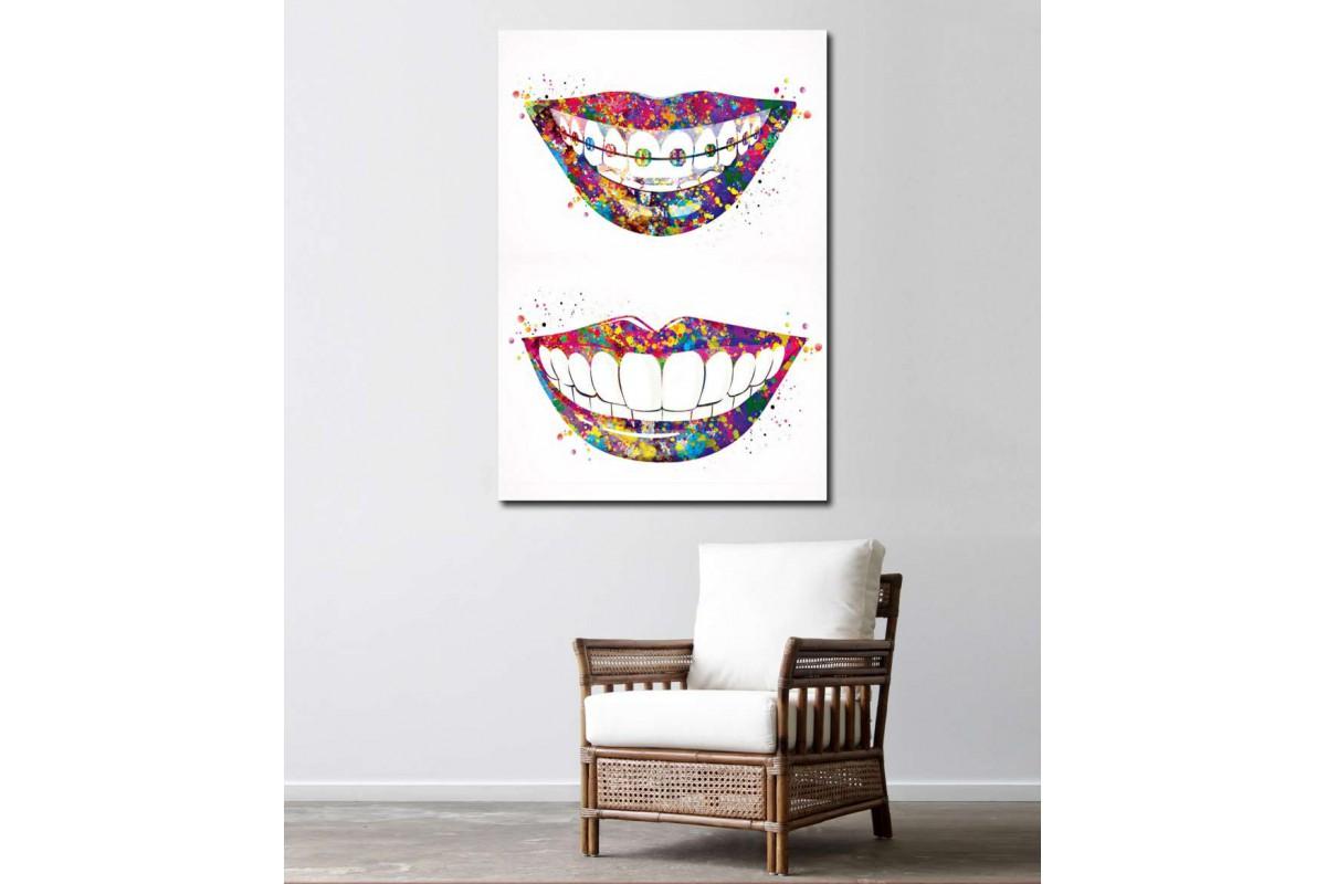 srdt3 - Diş Teli Takılmış Gülümseyen Kadın Diş Doktur Kanvas Tablo